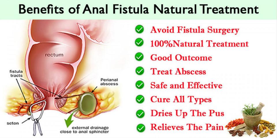 Anal Fistula Natural Treatment