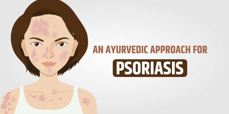 Best Ayurvedic Treatment For Psoriasis