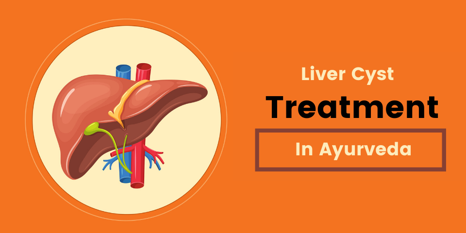 liver cyst treatment in ayurveda