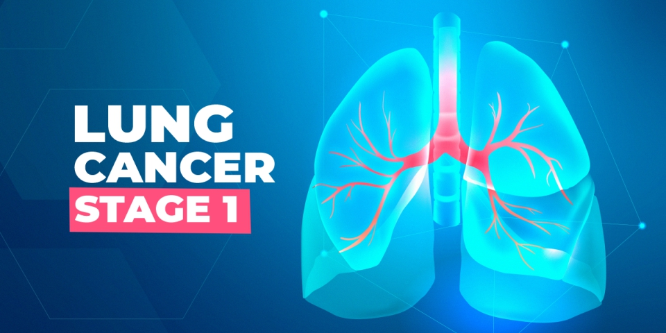 Lung Cancer Stage 1